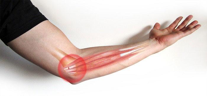 درمان عارضه گلف البو یا درد آرنج گلف بازان بدون جراحی