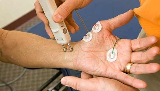 آزمایش سرعت هدایت عصبی (NCV)